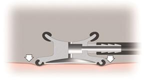 Utilizarea modului clopot (pentru frecvente joase)